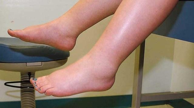 Fibromyalgie Schwellung