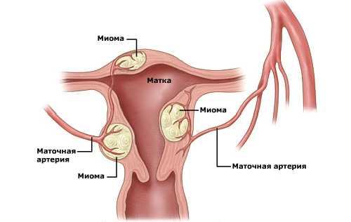 Исчезает ли миома после родов