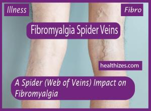 A Spider (Web of Veins) Impact on Fibromyalgia