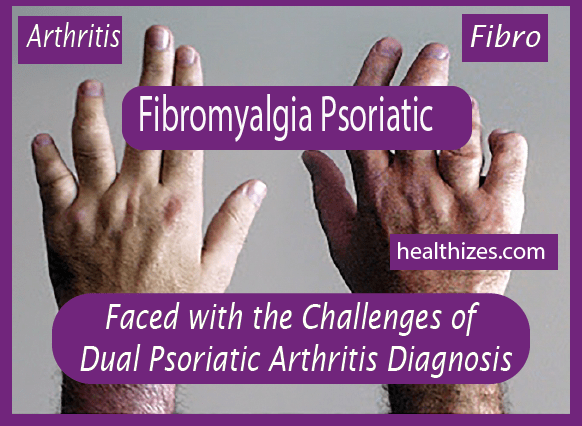 Faced with the Challenges of Dual Psoriatic Arthritis Diagnosis