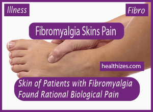 Skin of Patients with Fibromyalgia Found Rational Biological Source of Pain