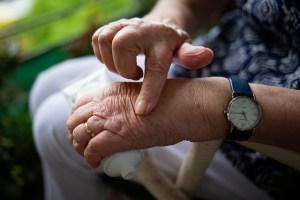 Arthritis; Ain't Nobody Got Time for That