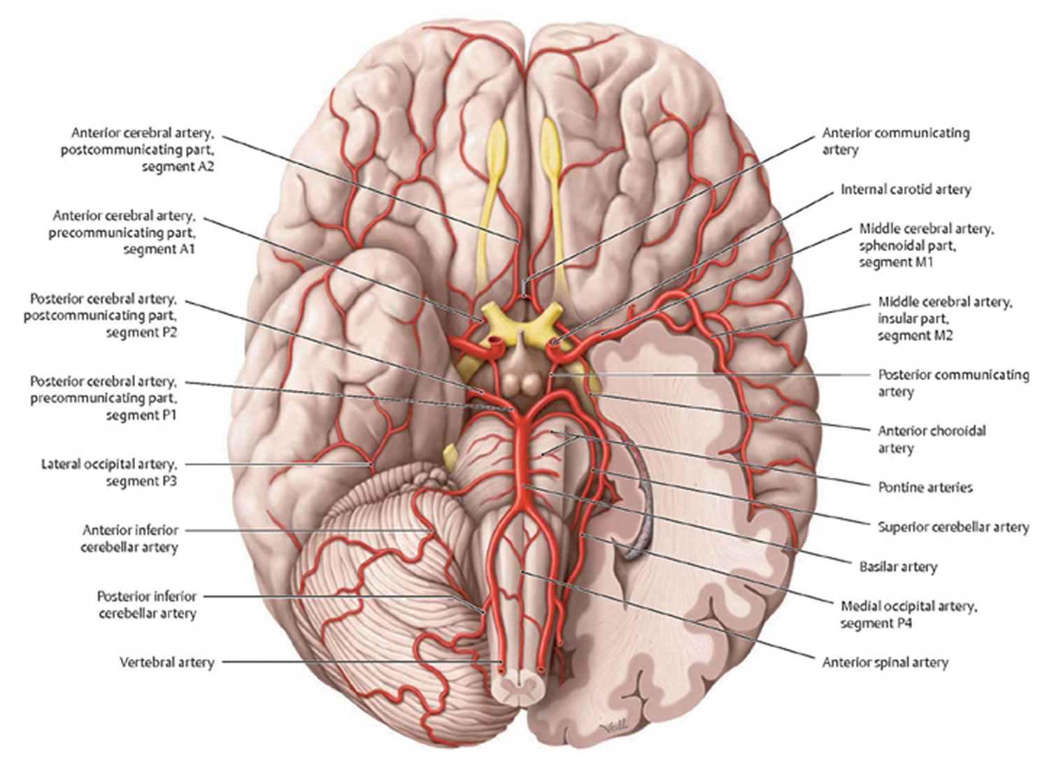 What Is Vascular Dementia Symptoms Causes Stages Amp Life