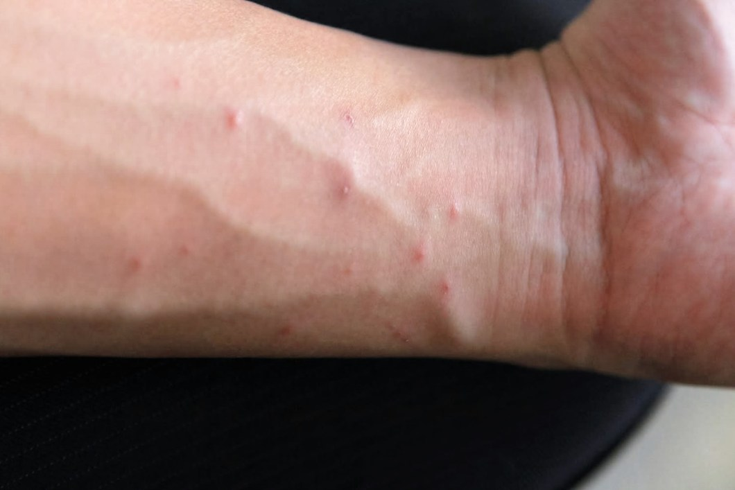 What Can You Use For Ringworm On A Dog