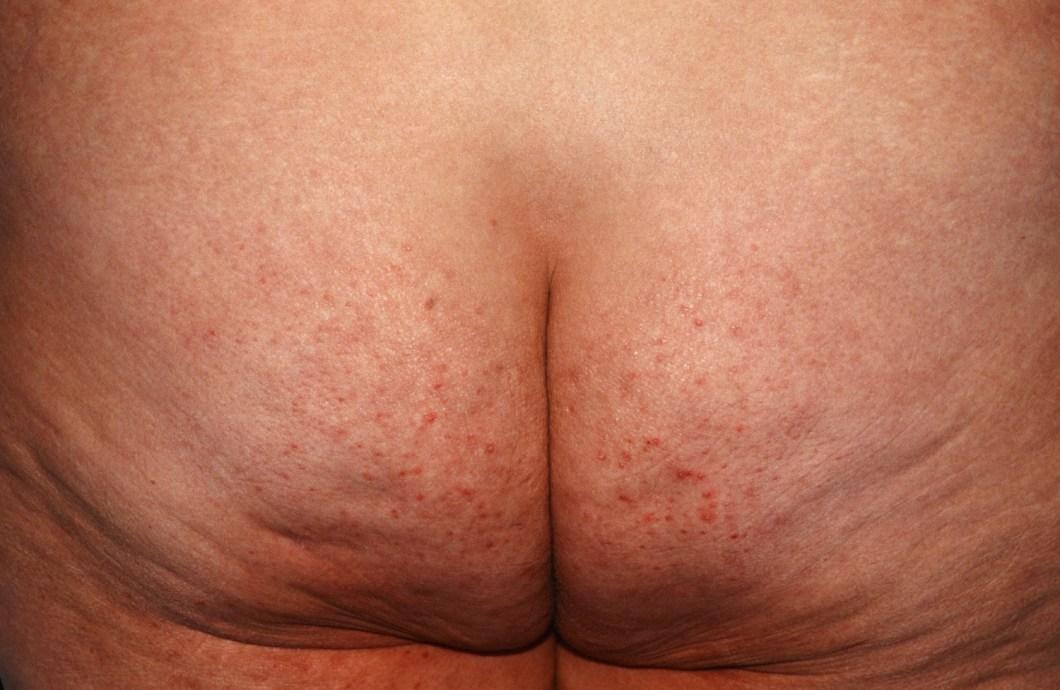 hair removal folliculitis | Amathair co