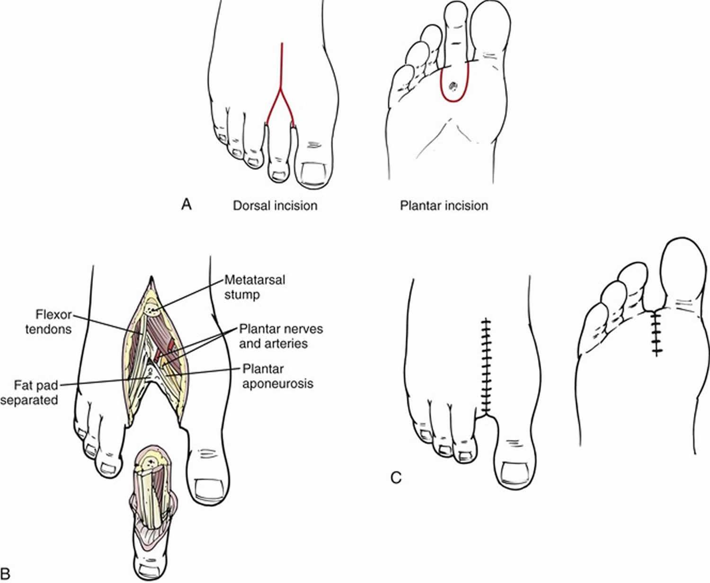 Amputation Causes Types Of Amputation And Amputation