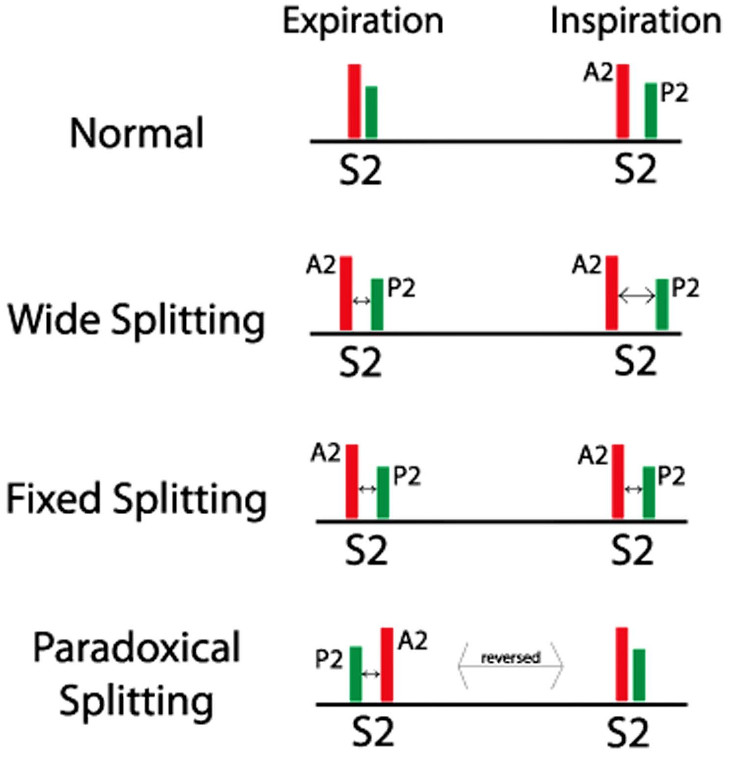 Split S2 Heart Sound Causes Of Split S2 Amp Abnormal Split
