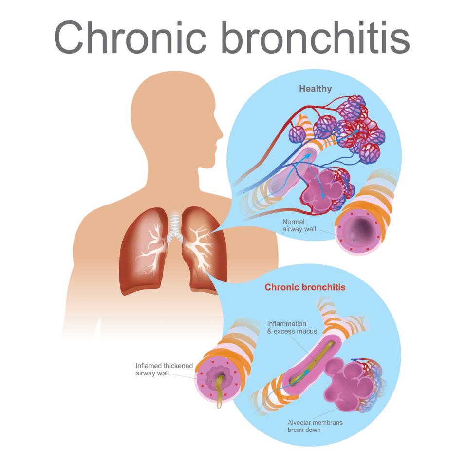 Bronchitis Symptoms, Causes, Diagnosis and Treatment