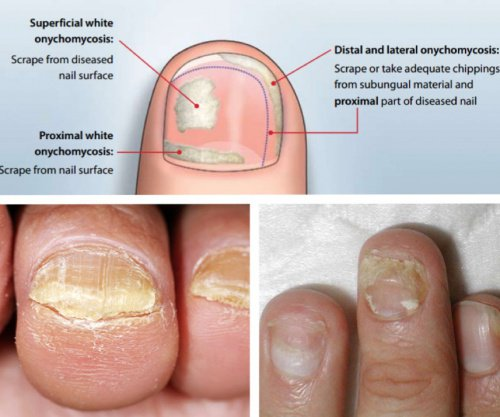 Nail Fungus Is A Mon Condition That Beings As White Or Yellow Spot Under The Tip Of Your Fingernail Toenail Fungal Infection Spre Deeper