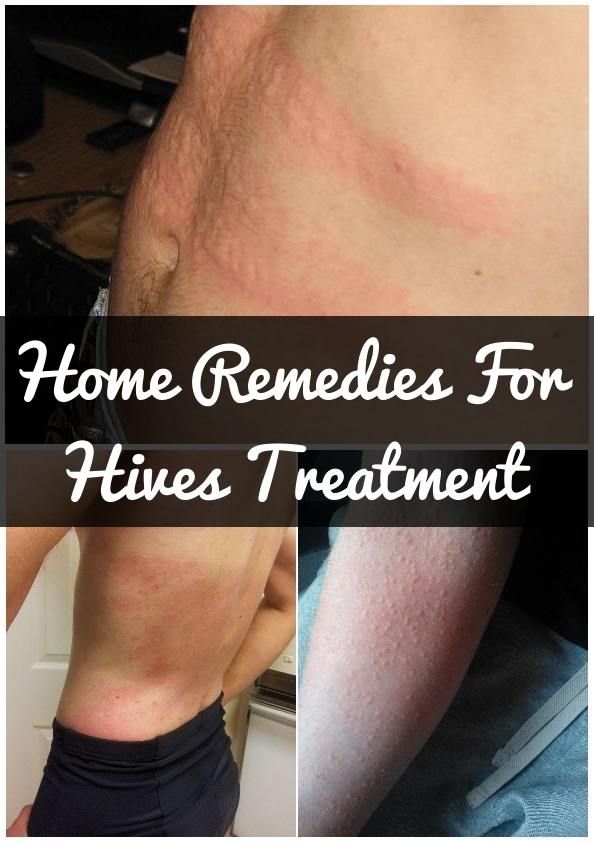 How-To-Get-Rid-Of-Hives-Naturally.jpg?b0bc0c