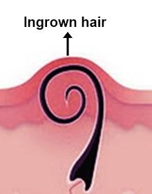 ingrown hair on head scalp causes symptoms treatment