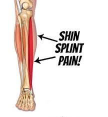 shin splint pain