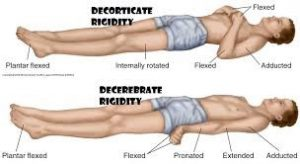 Abnormal Posturing. Decorticate and Decerebrate Rigidity