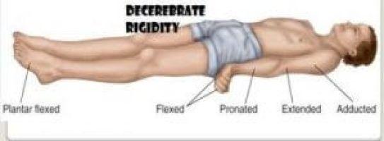 Decerebrate Rigidity