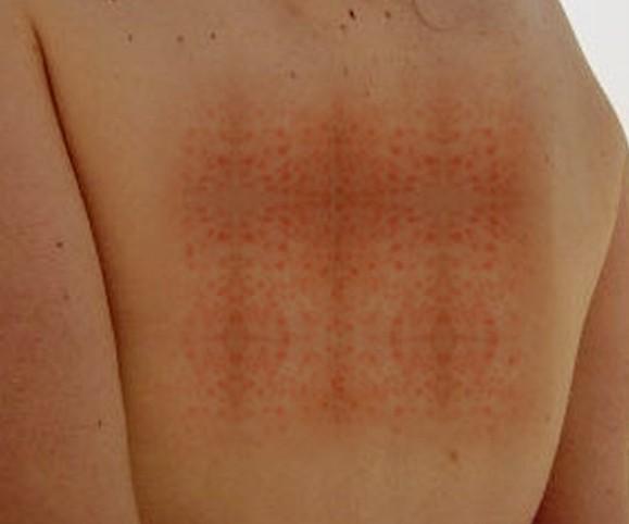 How Cure German Measles Fast