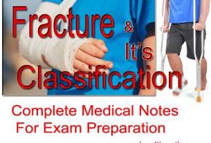 Classification of Fracture