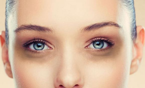 How To Make Eyes Brighter Naturally