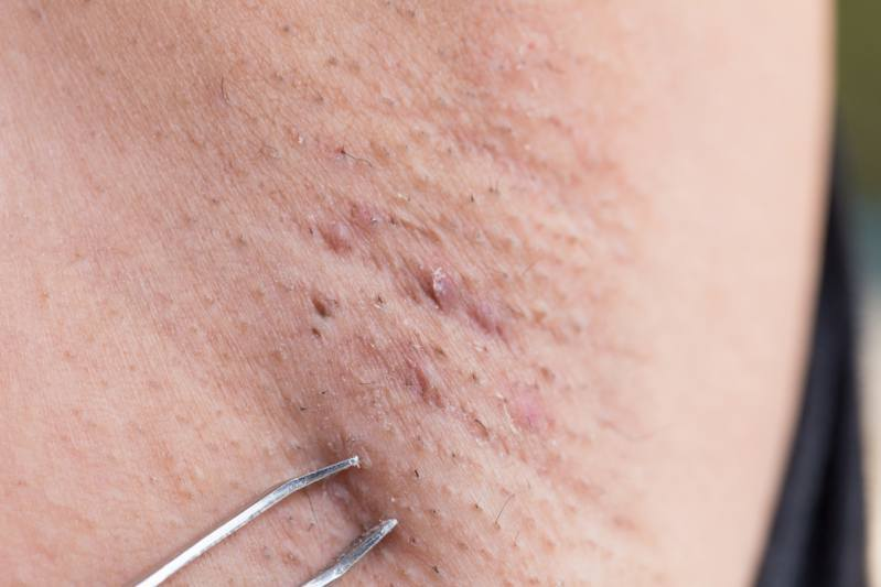 Ingrown Armpit Hair With Lump Cyst Pain How To Remove