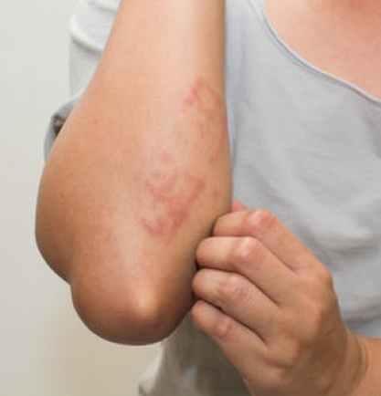 Bumps-on-elbows-or-elbow-rash