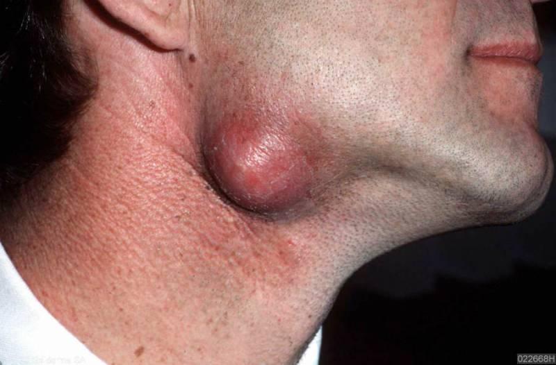 Anal ass bdsm pain femdom
