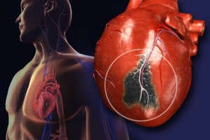 Heart Attack - Why Men are at Higher Risk