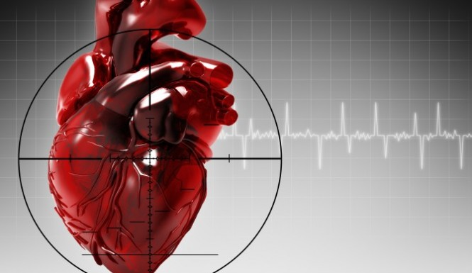 Precautions to be taken to reduce the risk of heart attack