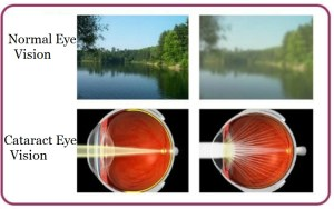 Cataract - How to prevent this age-related vision problem