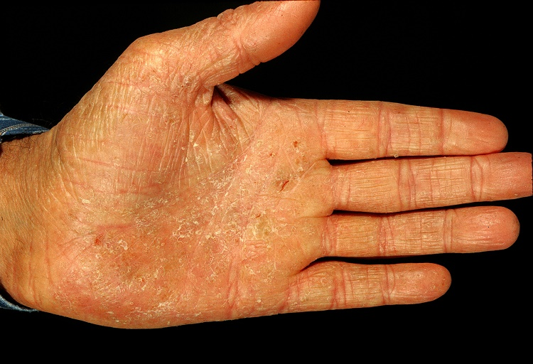 What are the causes of eczema? Is it contagious?