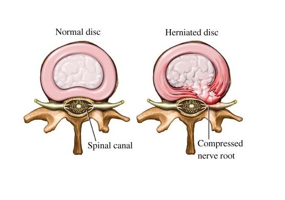 What is spinal disc herniation?