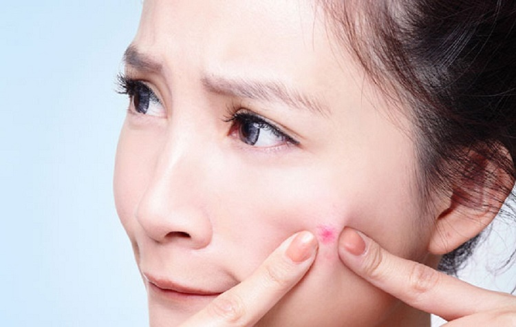 What are the natural ways to cure acne?