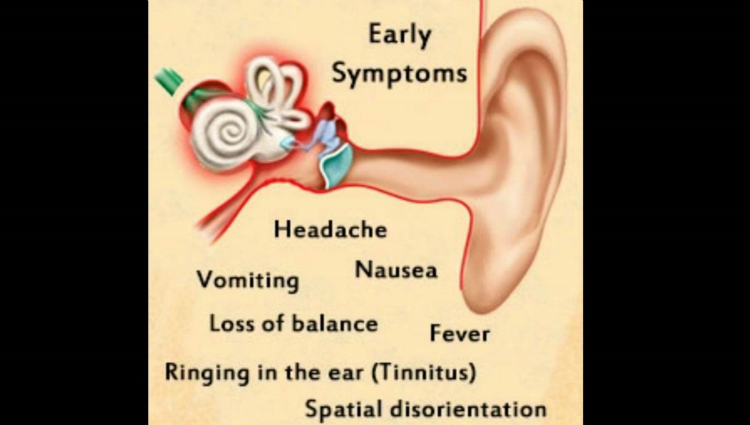 The following are symptoms of ear infection in adults