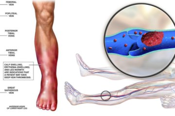 Deep Vein Thrombosis Is A Killer Disease. Here's All You Need To Know to Prevent DVT