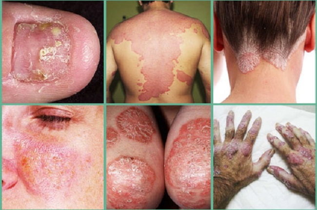 All You Need To Know About Psoriasis and How to Manage the Disease
