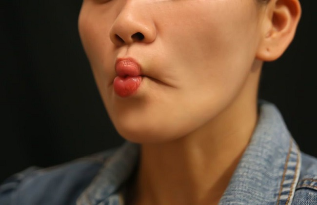 how to lose face fat Fish face