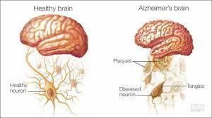 Alzheimer Persons on Antibiotics Experience Frequent hospitalisation