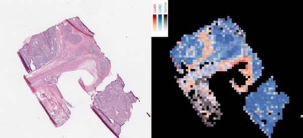 AI Differentiates Lung Cancer Cells
