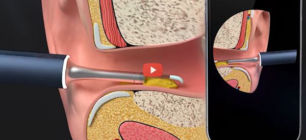 Watch as You Remove Earwax with Smart Spade [video]
