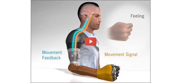 Neural System Delivers Prosthetic Feedback