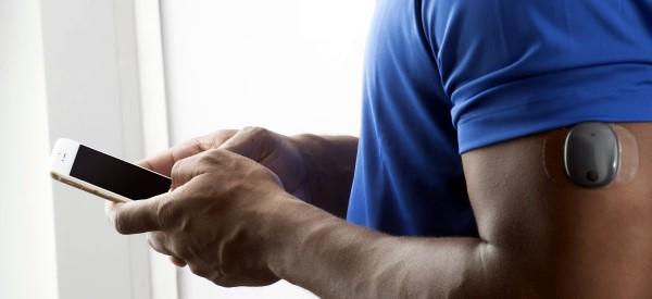 Glucose Sensor Implant Lasts 6 Months