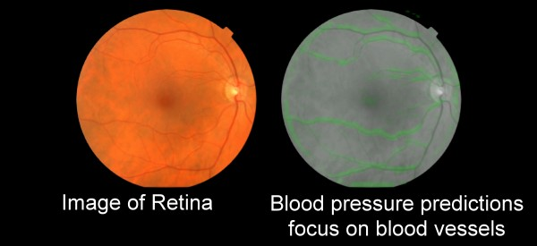 Deep Learning Predicts Heart Disease from Retina Images