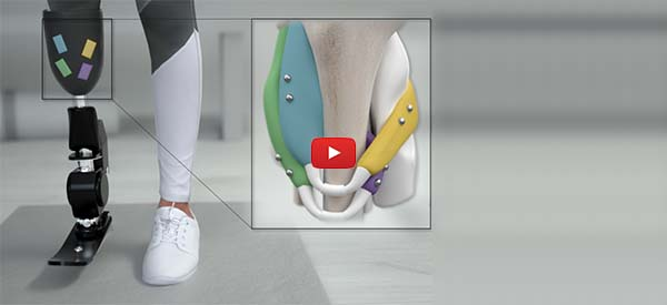 Magnets Could Offer a Non-Invasive Approach for Better Prosthetic Limb Control [video]