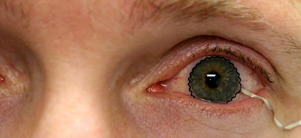 New Process Enables Soft Contact Lens to Track Eye Disease