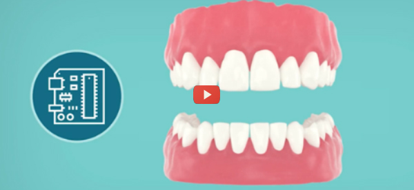 Smart Tooth Sensors Detect and Report Disease [video]