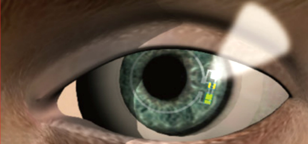 Soft, Smart Contact Lens to Measure Glucose