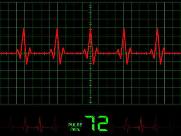 New Sensor for Better Heart Monitors