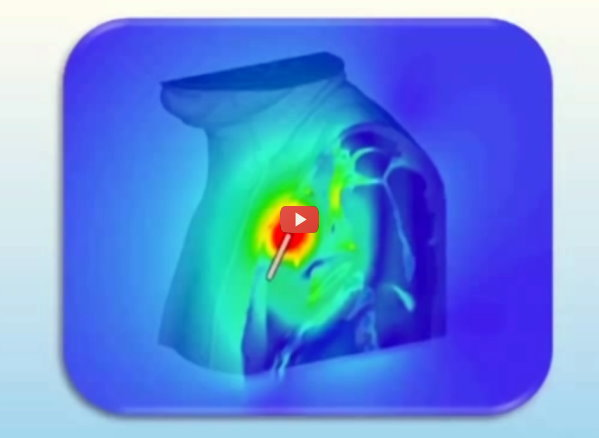 IDTechEx: Simulation Guides Wireless Implant Development [video]