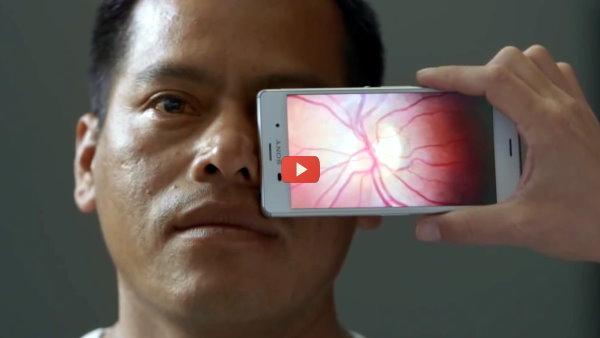 Smartphone Becomes Mobile Eye Exam [video]