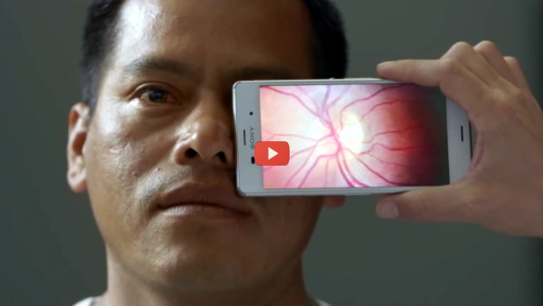 Smartphone Becomes Mobile Eye Exam [video]
