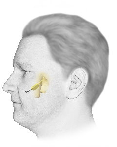 Implant Conquers Cluster Headaches