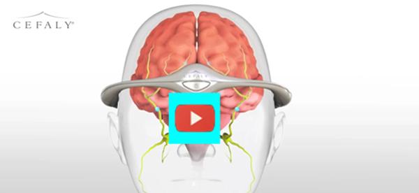 Relief for Migraines  [video]